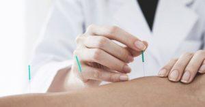 中国ならではの中医で腰に鍼を打つ