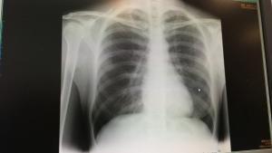 無料セミナーから、何と肺がんが発見されたケースも!