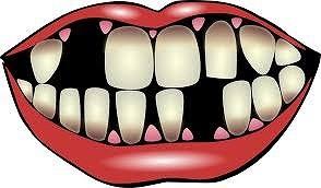 口の中のセルフチェックで、危険な病気が察知できます。