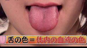 舌の色は血液の色と同じだそうです